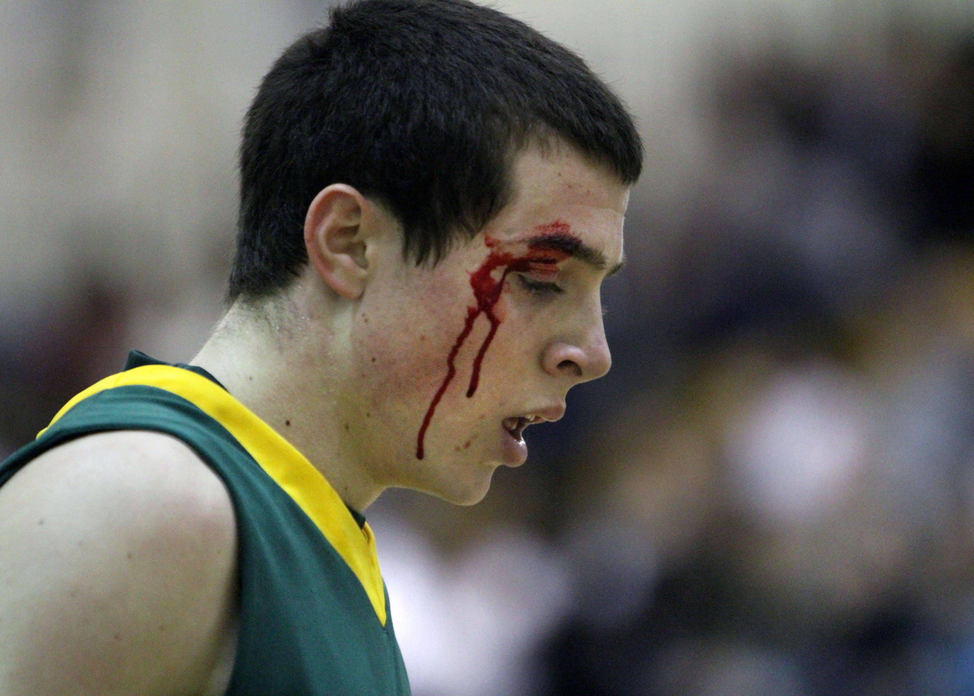 Stevenson's Michael Fleming heads to the locker room with a cut above his eye during the second quarter .
